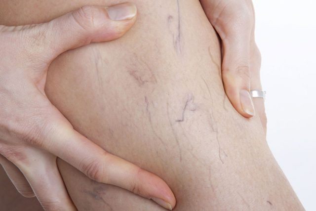 Benefits of treating spider veins